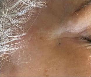 Augenpartie mit geminderten Falten nach Seidenfadenlifting