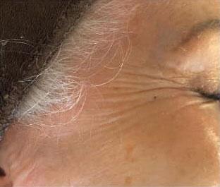 Augenpartie mit Falten