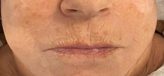 Mundpartie mit geminderten Falten nach Seidenfadenlifting
