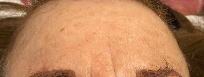 Stirn mit geminderten Falten nach Seidenfadenlifting
